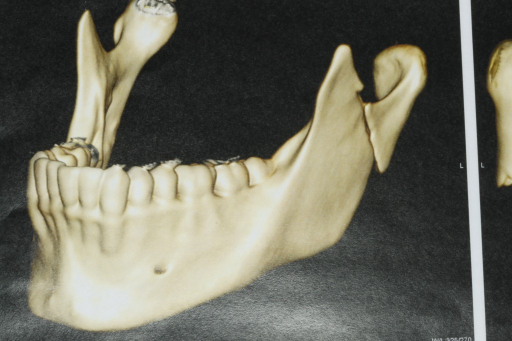 Fratura-do-Côndilo-Mandibular