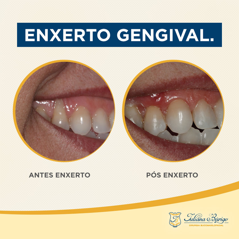 06_post_enxerto_gengival
