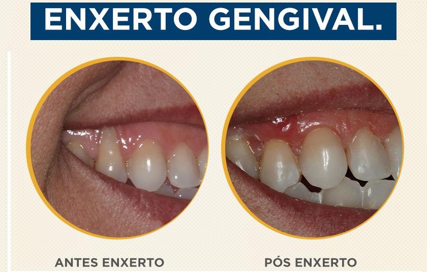 06_post_enxerto_gengival1