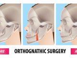 Comparação das mudanças na qualidade de vida entre os pacientes padrão II (dois) e III (três) de face durante e após o tratamento ortodôntico-cirúrgico
